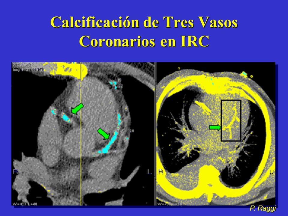 Calcificación de Tres Vasos Coronarios en IRC P. Raggi