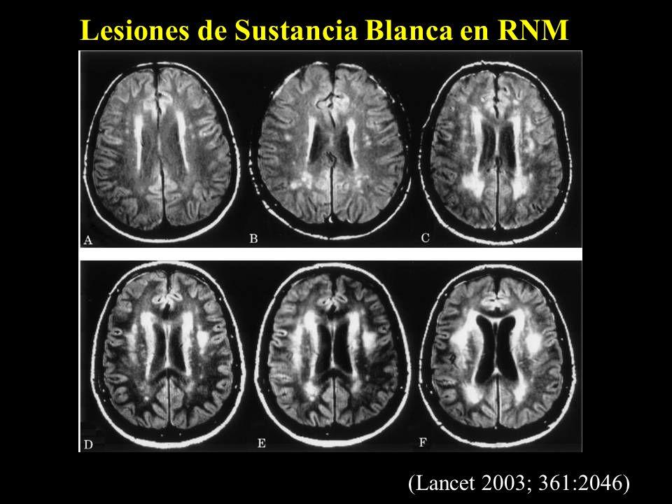 Lesiones de Sustancia Blanca en RNM (Lancet 2003; 361:2046)
