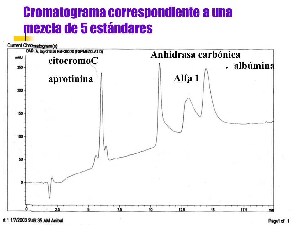 Cromatograma correspondiente a un individuo sano