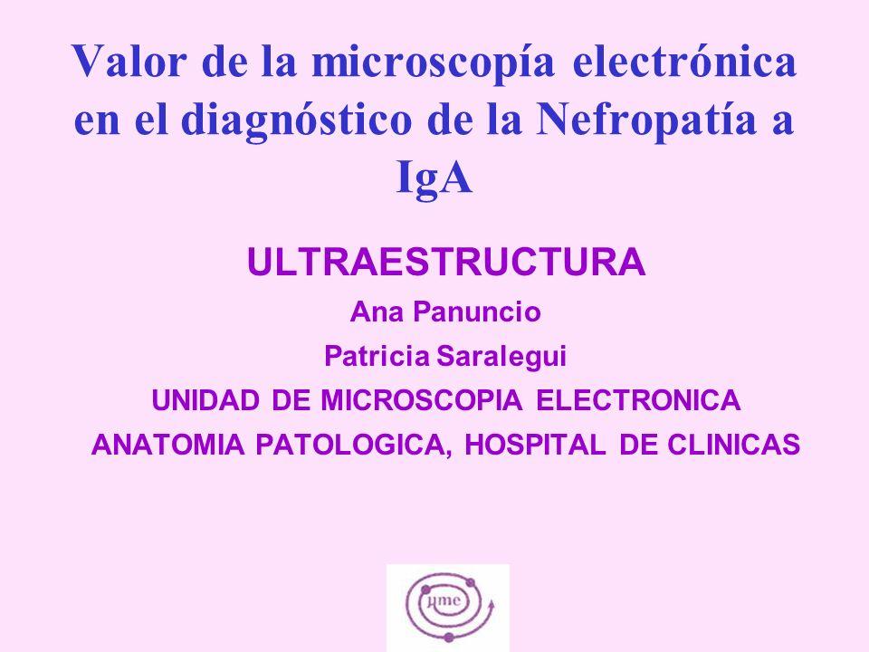 Valor de la microscopía electrónica en el diagnóstico de la Nefropatía a IgA ULTRAESTRUCTURA Ana Panuncio Patricia Saralegui UNIDAD DE MICROSCOPIA ELE