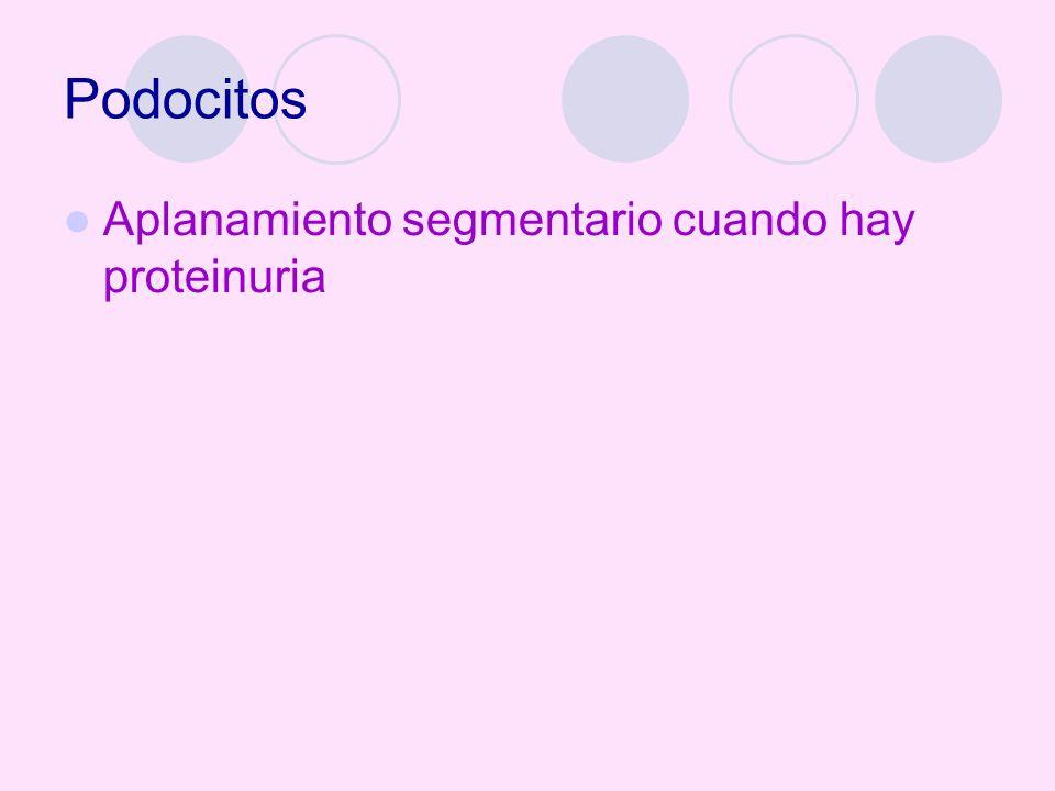 Podocitos Aplanamiento segmentario cuando hay proteinuria