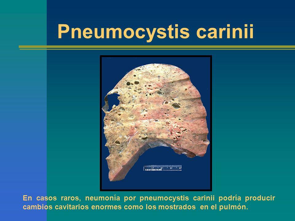 En casos raros, neumonía por pneumocystis carinii podría producir cambios cavitarios enormes como los mostrados en el pulmón. Pneumocystis carinii