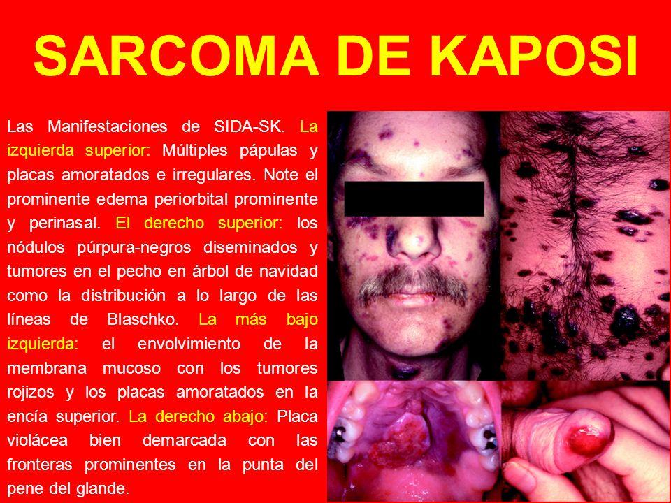 Las Manifestaciones de SIDA-SK. La izquierda superior: Múltiples pápulas y placas amoratados e irregulares. Note el prominente edema periorbital promi
