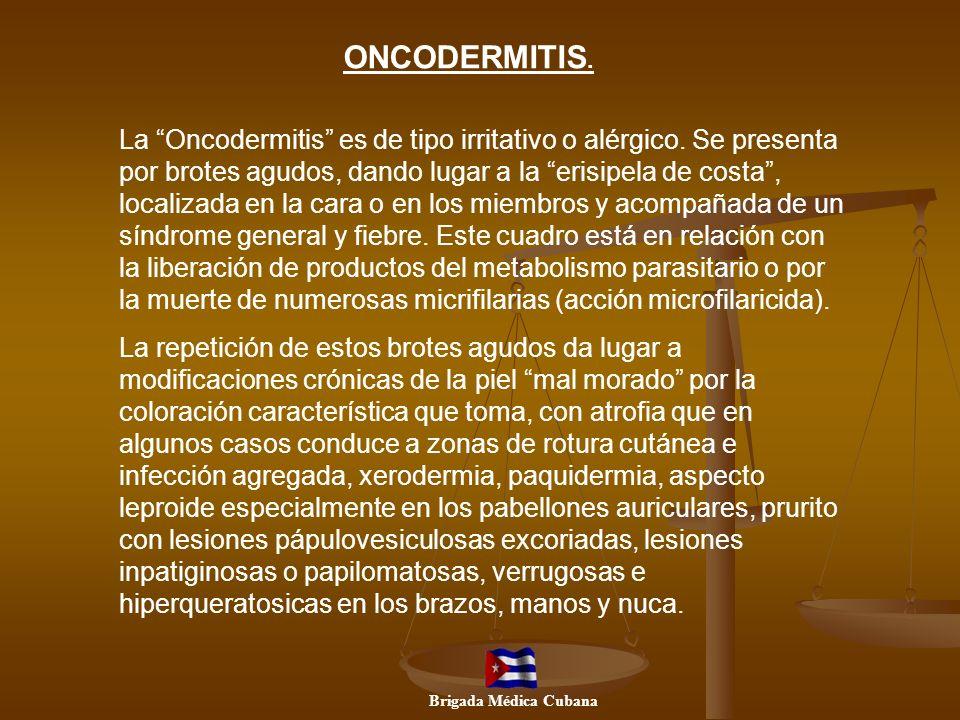 ONCODERMITIS. La Oncodermitis es de tipo irritativo o alérgico. Se presenta por brotes agudos, dando lugar a la erisipela de costa, localizada en la c