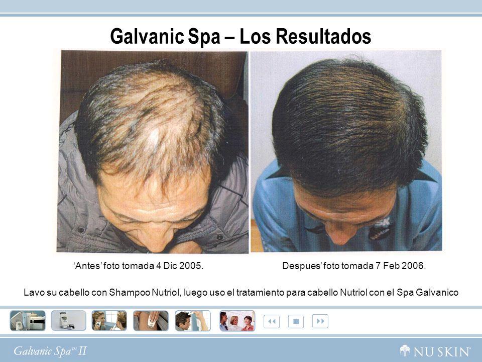 Lavo su cabello con Shampoo Nutriol, luego uso el tratamiento para cabello Nutriol con el Spa Galvanico Galvanic Spa – Los Resultados Antes foto tomad