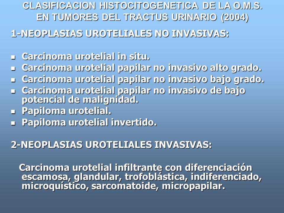 CLASIFICACION HISTOCITOGENETICA DE LA O.M.S. EN TUMORES DEL TRACTUS URINARIO (2004) 1-NEOPLASIAS UROTELIALES NO INVASIVAS: Carcinoma urotelial in situ