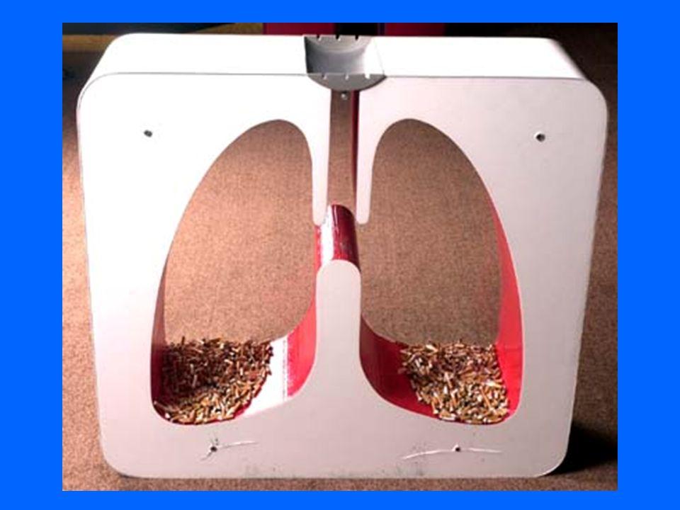 H- Otras Afectaciones que Puede Producir el Tabaquismo Altera Sentido del Gusto Altera Sentido del Olfato Altera Fonación Disfonía Gingivitis Piorrea Color Amarillo de los dientes Cefaleas Vespertinas Disminución de la Libido