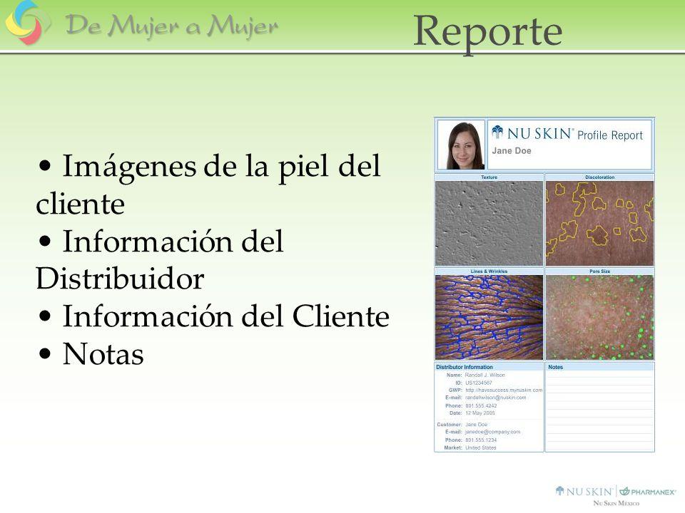Imágenes de la piel del cliente Información del Distribuidor Información del Cliente Notas Reporte