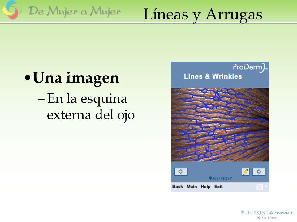 Líneas y Arrugas Una imagen –En la esquina externa del ojo