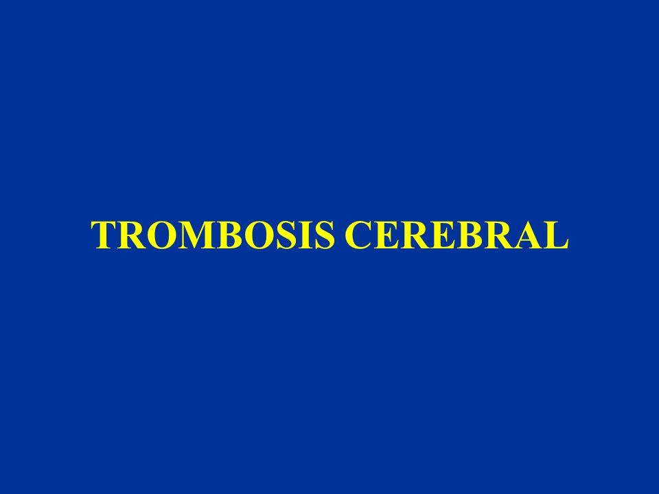 TROMBOSIS CEREBRAL