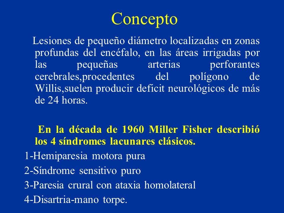 Concepto Lesiones de pequeño diámetro localizadas en zonas profundas del encéfalo, en las áreas irrigadas por las pequeñas arterias perforantes cerebr