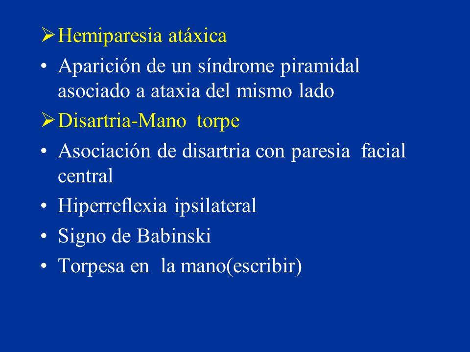Hemiparesia atáxica Aparición de un síndrome piramidal asociado a ataxia del mismo lado Disartria-Mano torpe Asociación de disartria con paresia facia