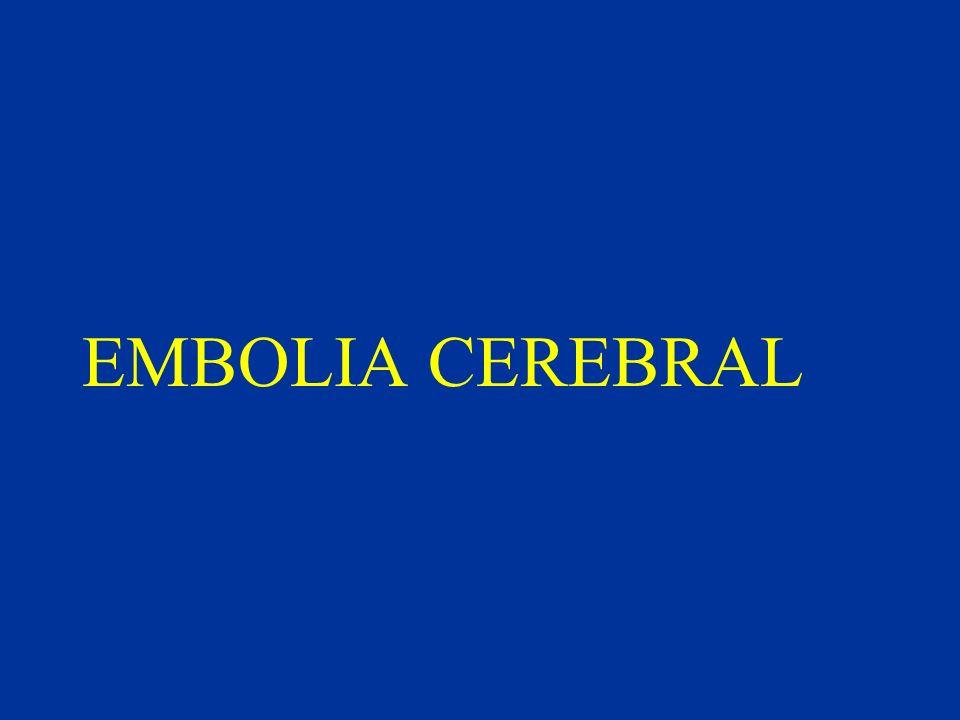 EMBOLIA CEREBRAL