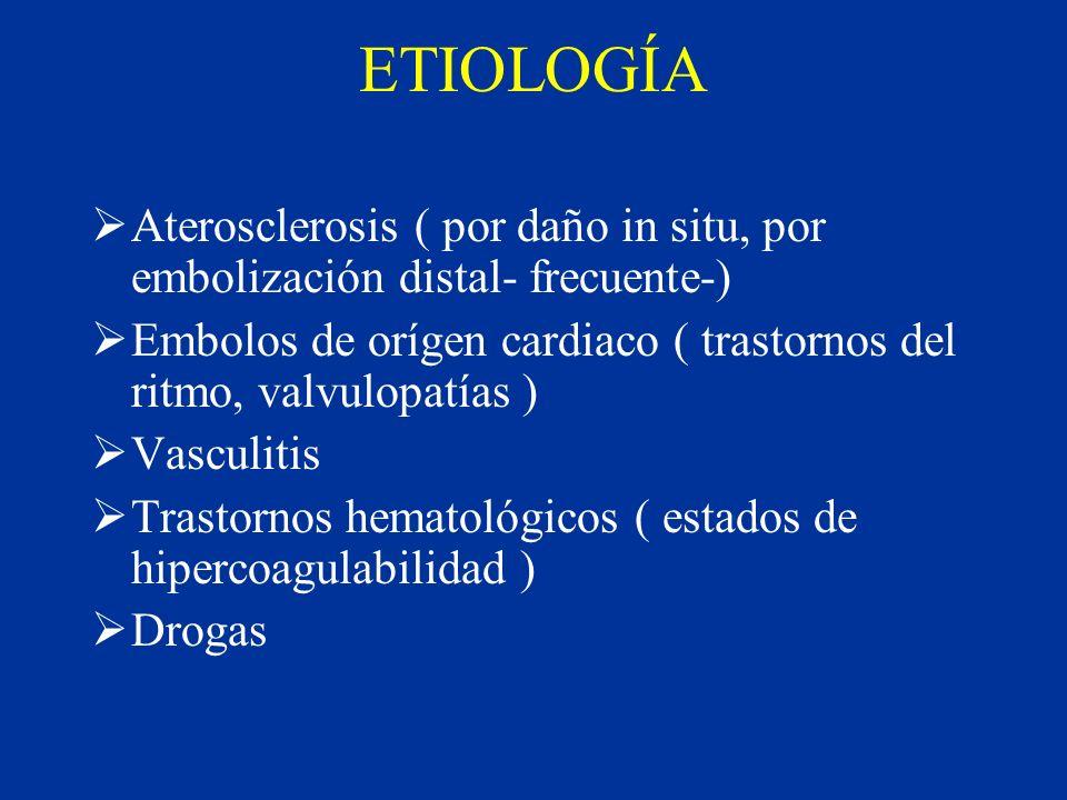 ETIOLOGÍA Aterosclerosis ( por daño in situ, por embolización distal- frecuente-) Embolos de orígen cardiaco ( trastornos del ritmo, valvulopatías ) V