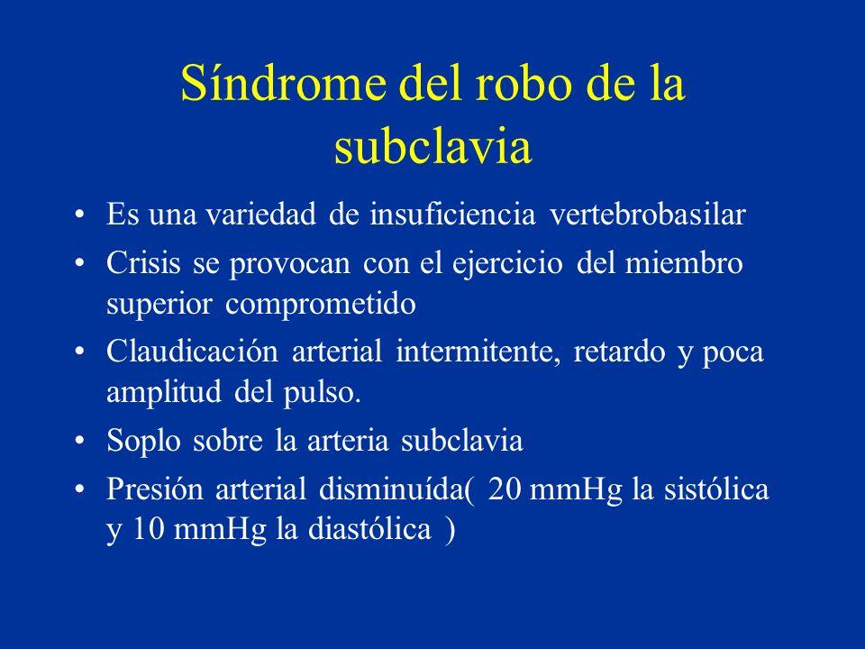 Síndrome del robo de la subclavia Es una variedad de insuficiencia vertebrobasilar Crisis se provocan con el ejercicio del miembro superior comprometi