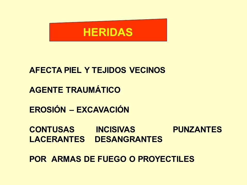 HERIDAS AFECTA PIEL Y TEJIDOS VECINOS AGENTE TRAUMÁTICO EROSIÓN – EXCAVACIÓN CONTUSAS INCISIVAS PUNZANTES LACERANTES DESANGRANTES POR ARMAS DE FUEGO O