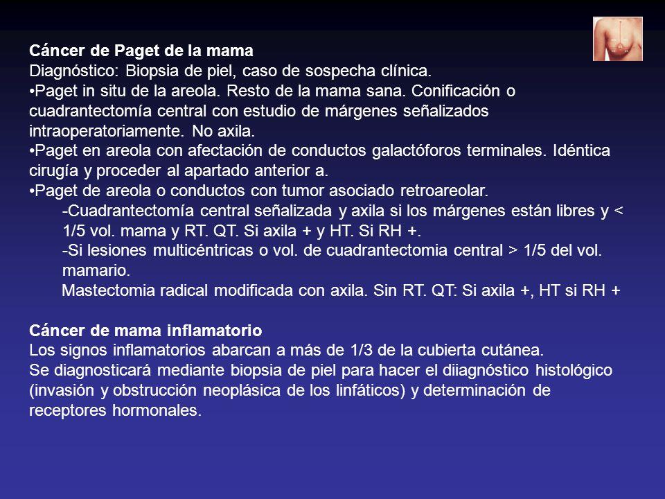 Cáncer de Paget de la mama Diagnóstico: Biopsia de piel, caso de sospecha clínica. Paget in situ de la areola. Resto de la mama sana. Conificación o c