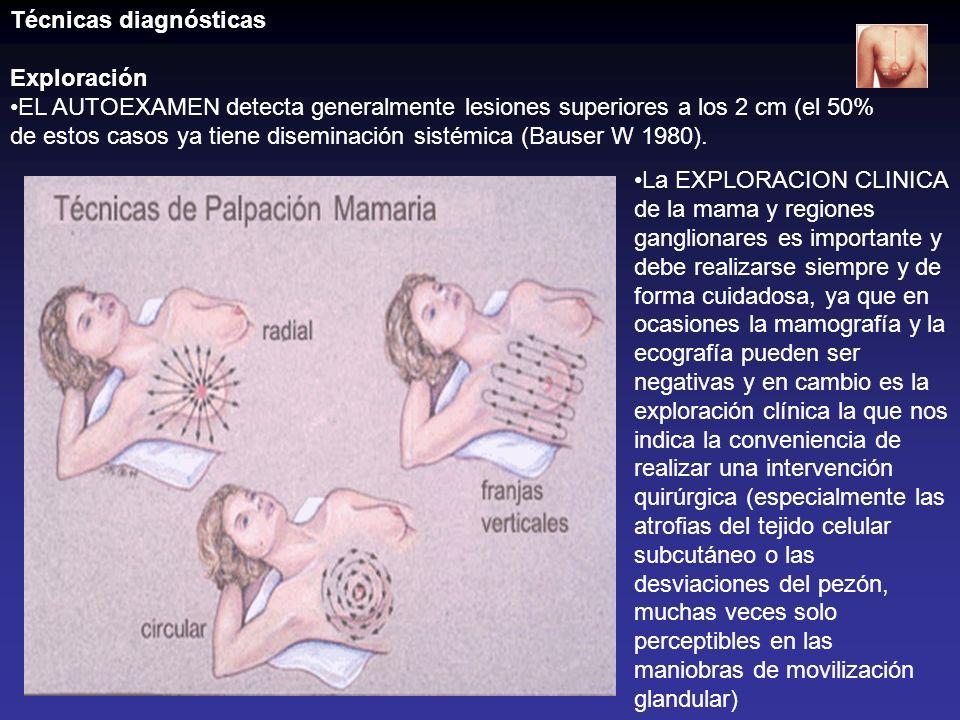 Cáncer de Paget de la mama Diagnóstico: Biopsia de piel, caso de sospecha clínica.