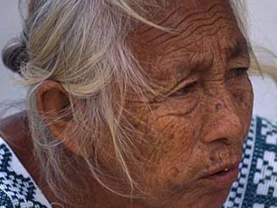 Síntomas Del Envejecimiento