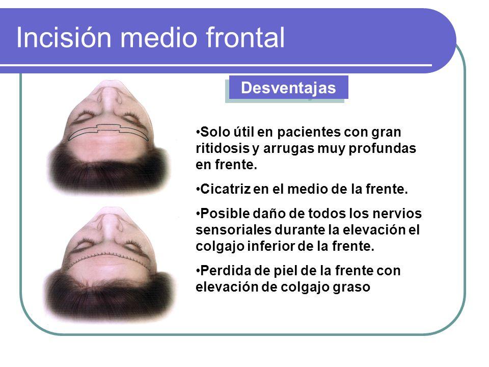 Incisión medio frontal Desventajas Solo útil en pacientes con gran ritidosis y arrugas muy profundas en frente. Cicatriz en el medio de la frente. Pos