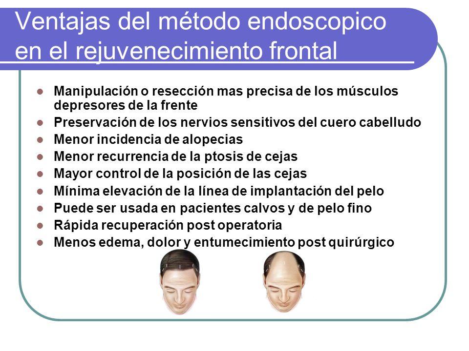 Ventajas del método endoscopico en el rejuvenecimiento frontal Manipulación o resección mas precisa de los músculos depresores de la frente Preservaci