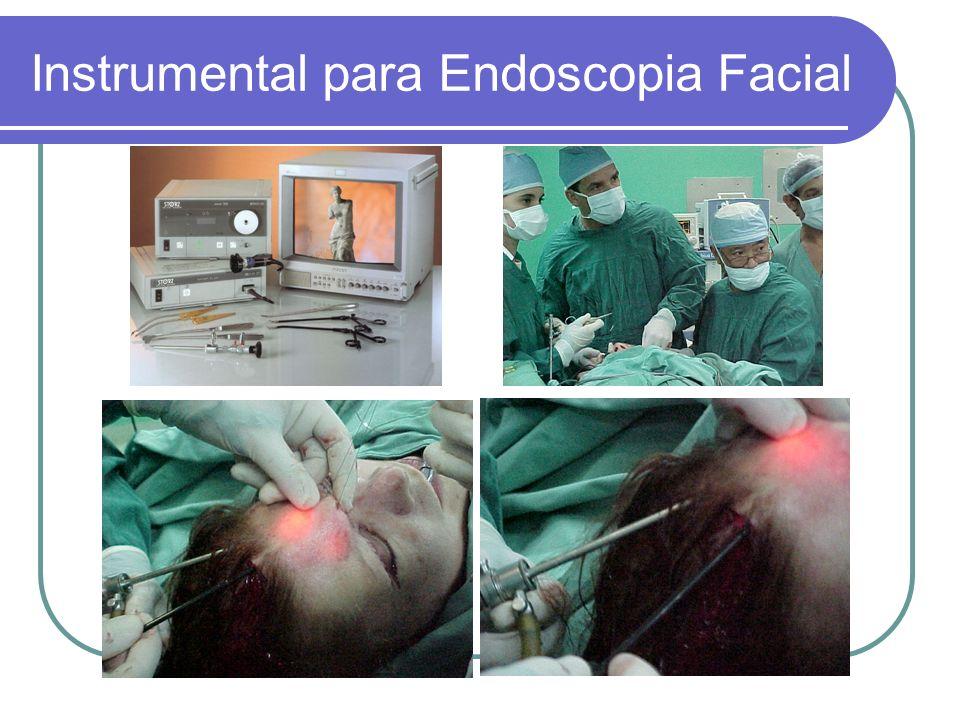 Instrumental para Endoscopia Facial
