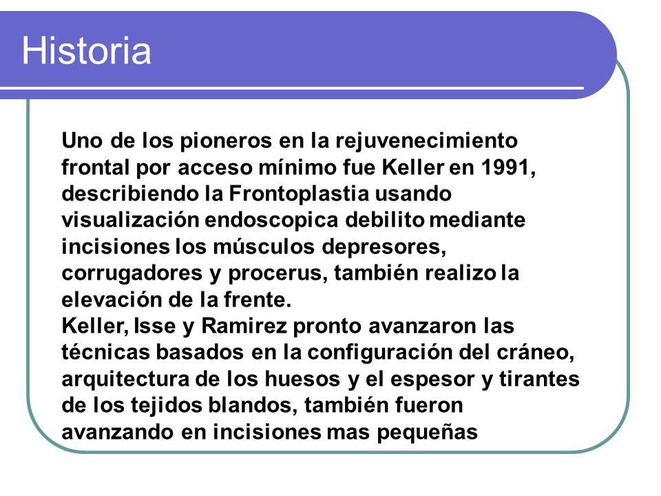 Historia Uno de los pioneros en la rejuvenecimiento frontal por acceso mínimo fue Keller en 1991, describiendo la Frontoplastia usando visualización e