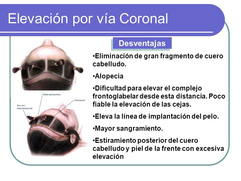 Elevación por vía Coronal Desventajas Eliminación de gran fragmento de cuero cabelludo. Alopecia Dificultad para elevar el complejo frontoglabelar des