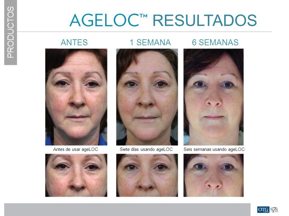 PRODUCTOS RESULTADOS ANTES 1 SEMANA 6 SEMANAS Antes de usar ageLOC Siete días usando ageLOC Seis semanas usando ageLOC