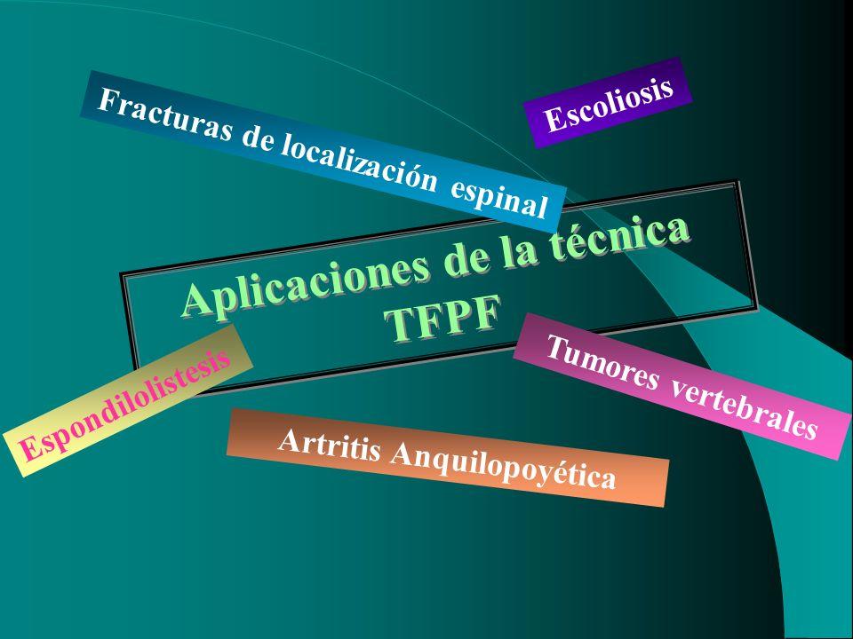 Aplicaciones de la técnica TFPF Fracturas de localización espinal Tumores vertebrales Espondilolistesis Artritis Anquilopoyética Escoliosis