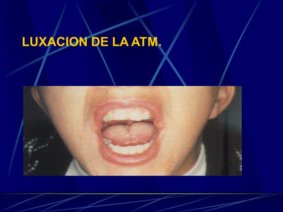 LUXACION DE LA ATM.