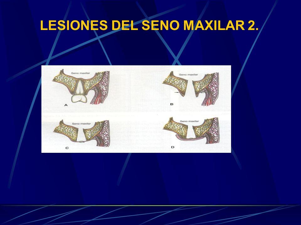 LESIONES DEL SENO MAXILAR 2.