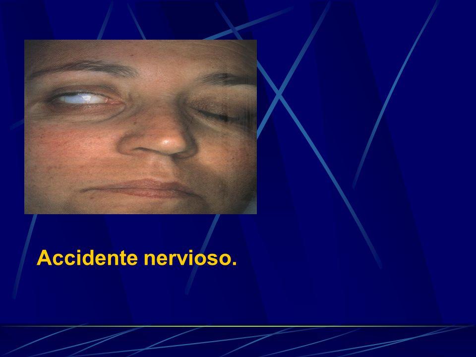 Accidente nervioso.
