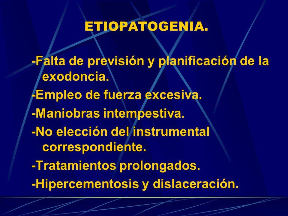 ETIOPATOGENIA. -Falta de previsión y planificación de la exodoncia. -Empleo de fuerza excesiva. -Maniobras intempestiva. -No elección del instrumental