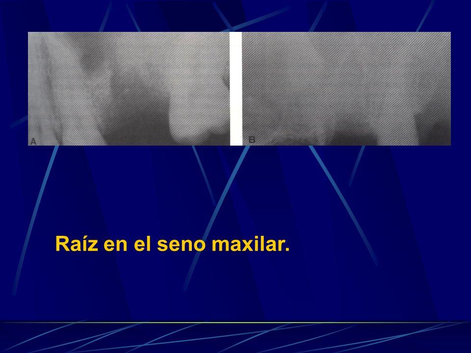 Raíz en el seno maxilar.
