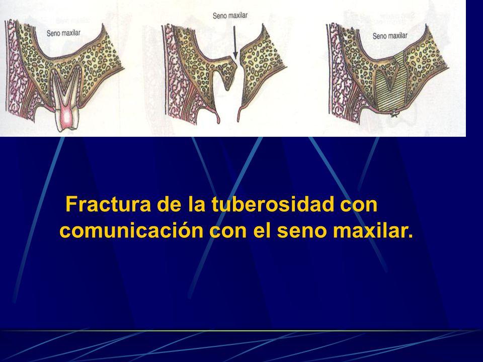Fractura de la tuberosidad con comunicación con el seno maxilar.
