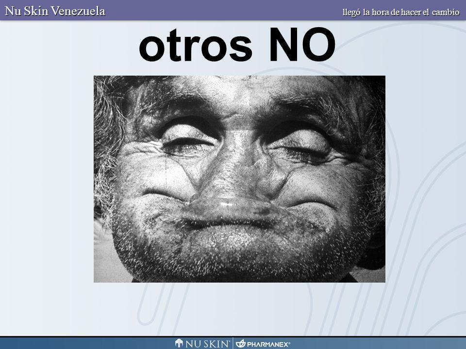 otros NO Nu Skin Venezuela llegó la hora de hacer el cambio