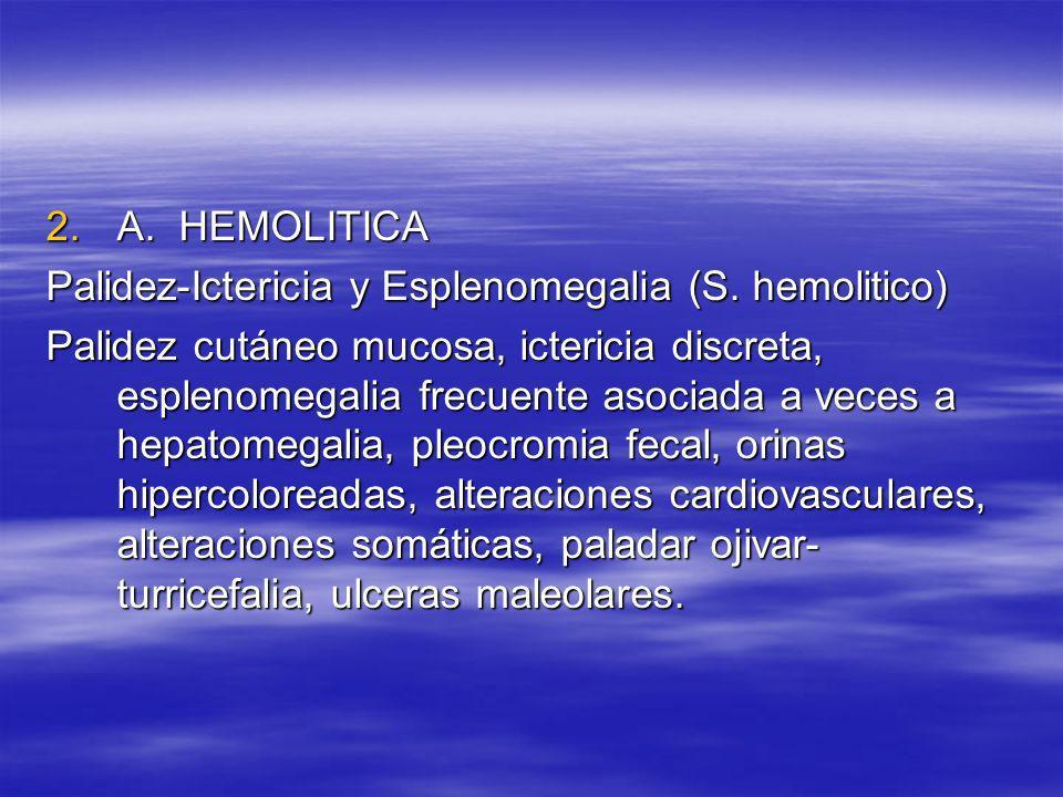 2.A. HEMOLITICA Palidez-Ictericia y Esplenomegalia (S. hemolitico) Palidez cutáneo mucosa, ictericia discreta, esplenomegalia frecuente asociada a vec