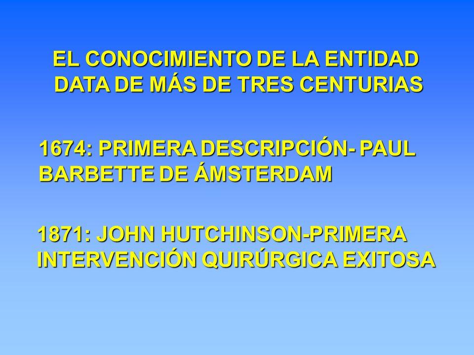 1674: PRIMERA DESCRIPCIÓN- PAUL BARBETTE DE ÁMSTERDAM 1871: JOHN HUTCHINSON-PRIMERA INTERVENCIÓN QUIRÚRGICA EXITOSA EL CONOCIMIENTO DE LA ENTIDAD DATA