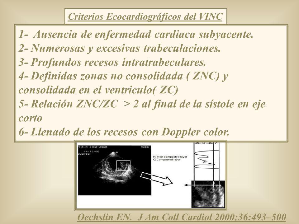Criterios Ecocardiográficos del VINC 1- Ausencia de enfermedad cardiaca subyacente. 2- Numerosas y excesivas trabeculaciones. 3- Profundos recesos int