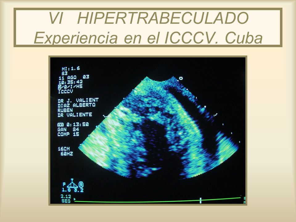 VI HIPERTRABECULADO Experiencia en el ICCCV. Cuba