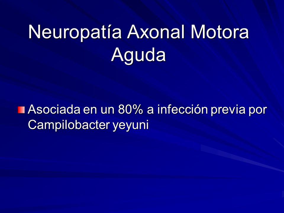 Neuropatía Axonal Motora Aguda Asociada en un 80% a infección previa por Campilobacter yeyuni