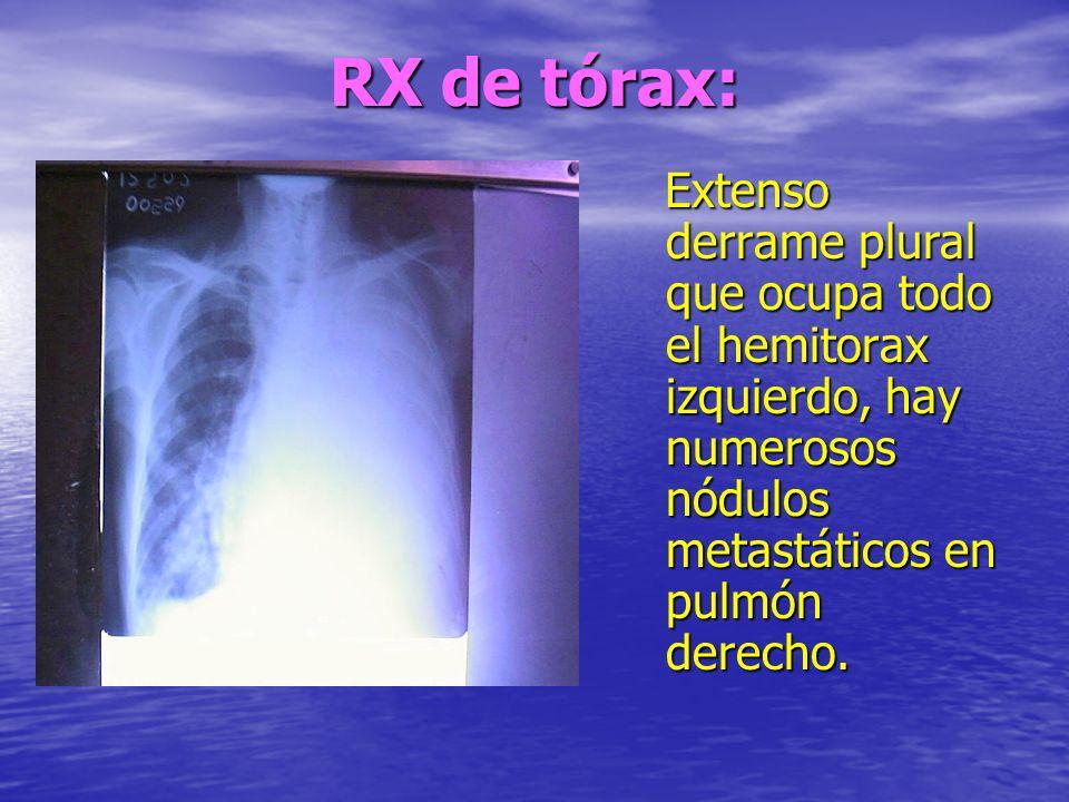 RX de tórax: Extenso derrame plural que ocupa todo el hemitorax izquierdo, hay numerosos nódulos metastáticos en pulmón derecho. Extenso derrame plura