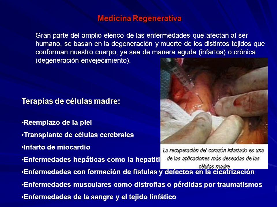 Medicina Regenerativa Terapias de células madre: Reemplazo de la piel Transplante de células cerebrales Infarto de miocardio Enfermedades hepáticas co