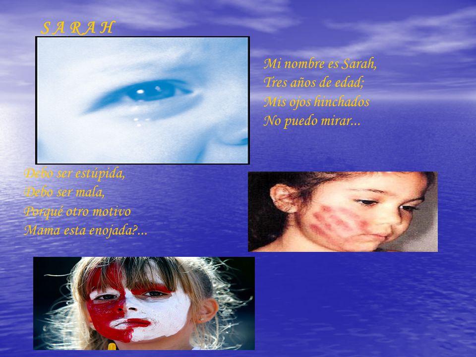 S A R A H Mi nombre es Sarah, Tres años de edad; Mis ojos hinchados No puedo mirar...
