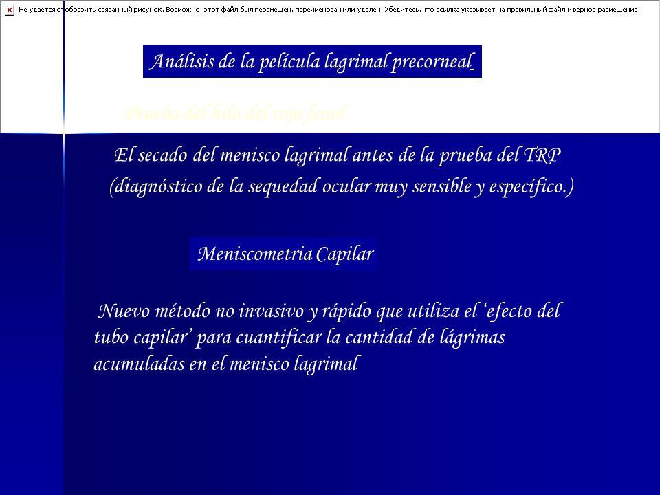 Análisis de la película lagrimal precorneal Prueba del hilo del rojo fenol El secado del menisco lagrimal antes de la prueba del TRP (diagnóstico de l