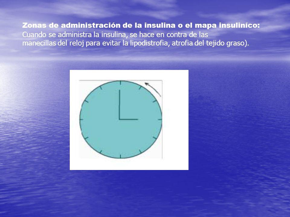 Zonas de administración de la insulina o el mapa insuliníco: Cuando se administra la insulina, se hace en contra de las manecillas del reloj para evit