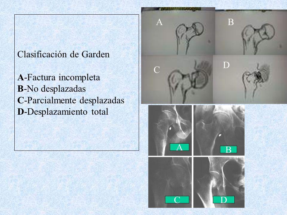 Subcapital Transcervical Basicervical Clasificación de Pauwels : Horizontal con trazo de fractura ( 3 grados ) Garden : Por las trabeculas de carga (4
