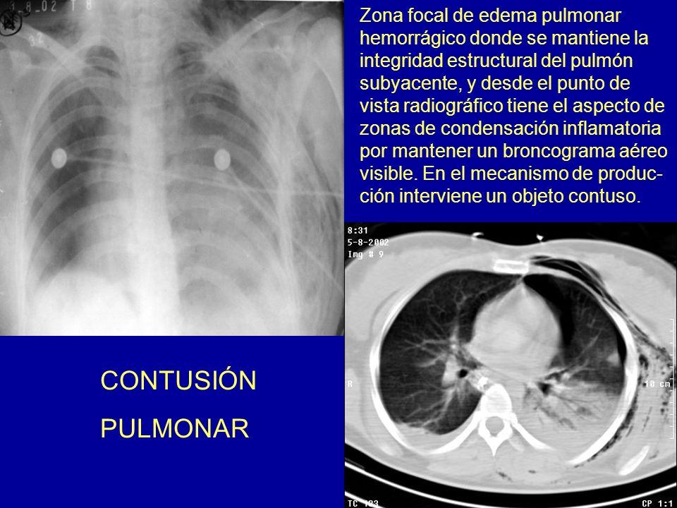 CONTUSIÓN PULMONAR Zona focal de edema pulmonar hemorrágico donde se mantiene la integridad estructural del pulmón subyacente, y desde el punto de vis