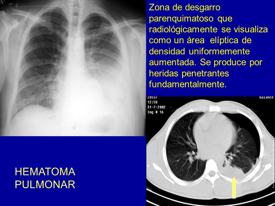 HEMATOMA PULMONAR Zona de desgarro parenquimatoso que radiológicamente se visualiza como un área elíptica de densidad uniformemente aumentada. Se prod